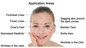 cosmetic_acupuncture32